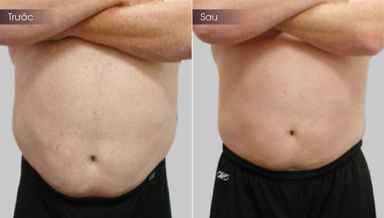 Hình ảnh khách hàng trước sau giảm béo tại Thẩm mỹ viện Đông Á