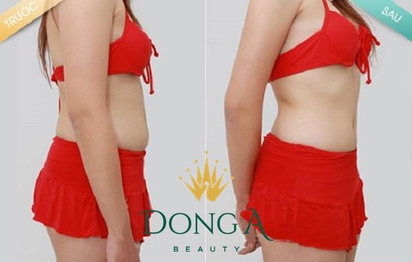 hình ảnh giảm béo