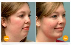 Top 6 cách Giảm béo mặt Đặc biệt Hiệu quả – Không thể bỏ qua