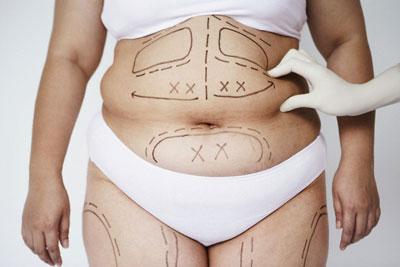 Cần chăm sóc thế nào sau khi giảm mỡ bụng công nghệ 3D Lipo? 1