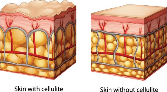 Xóa bỏ hoàn toàn Cellulite bằng giải pháp giảm béo công nghệ cao
