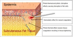 Xếp hạng các phương pháp giảm mỡ bụng tốt nhất hiện nay