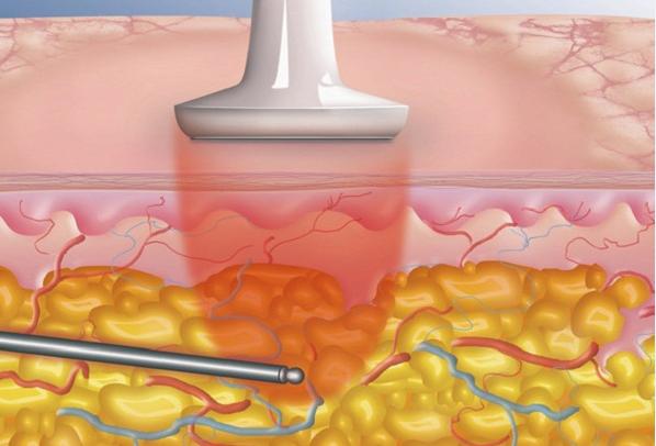 Quy trình giảm mỡ bụng bằng công nghệ 3D Lipo