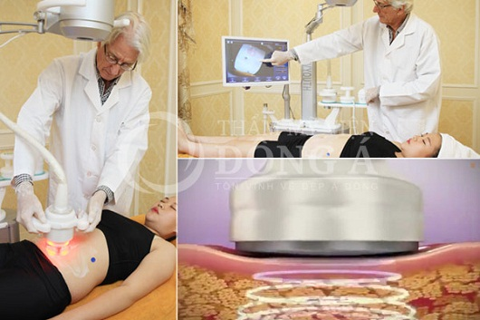 Giảm béo 3D Lipo có hiệu quả với người bị béo lâu năm không?