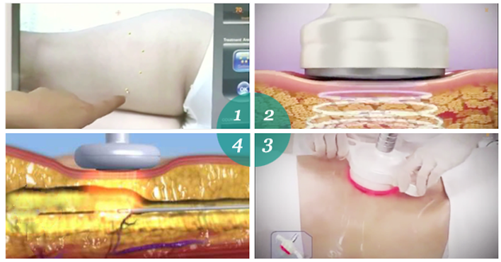 3D Lipo - Bước đột phá trong lĩnh vực giảm mỡ 2