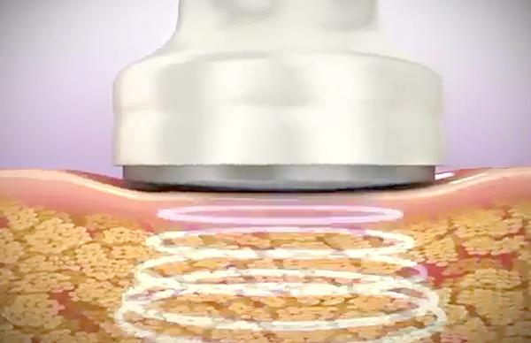 Giảm mỡ đùi có đau không? Bao lâu thì vận động bình thường được?