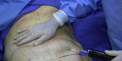 Hiểm họa khôn lường đằng sau những ca phẫu thuật hút mỡ