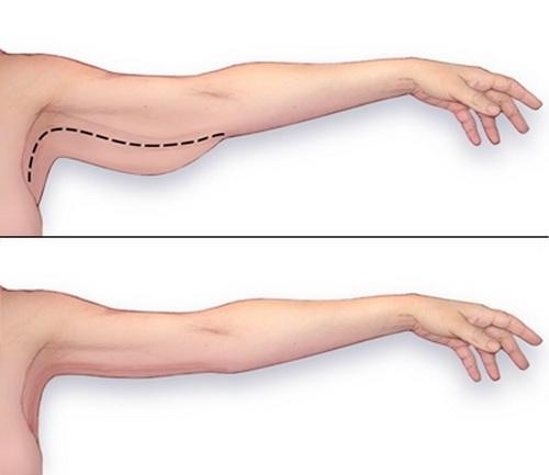 Giảm mỡ bắp tay chi phí bao nhiêu, có ảnh hưởng vận động không?