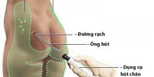 Top 3 cách giảm mỡ mông hiệu quả nhất cho mông tròn săn chắc
