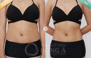 Giảm béo tại TMV Đông Á có hiệu quả không?