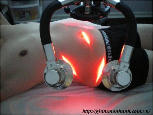 giam-mo-bang-laser- co-dau-khong