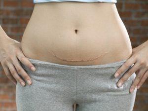 TOP 2 cách giảm cân sau sinh mổ AN TOÀN & HIỆU QUẢ sau 7 ngày