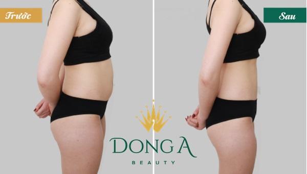 Giảm cân sau sinh mổ khác gì với sinh thường? Gợi ý giải pháp? 3
