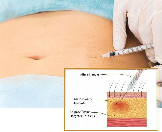 Giảm cân sau sinh mổ khác gì với sinh thường? Gợi ý giải pháp 4