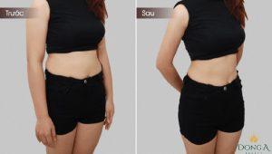 Giải pháp giảm mỡ bụng bằng 3D Lipo có hiệu quả không? 4