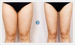 3 cấp độ giảm cân ở ĐÙI hiệu quả – đánh bay 3cm mỡ đùi trong 1 tuần